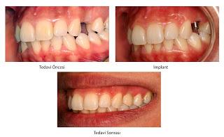 Emax ve implant diş
