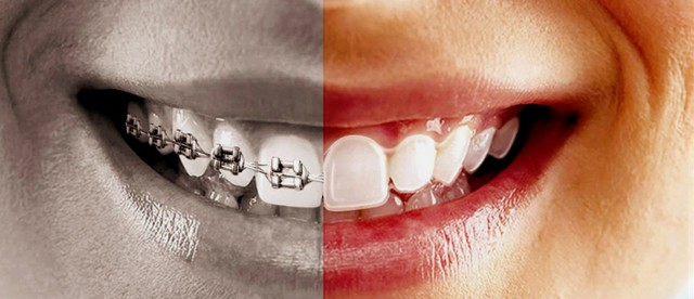 Şeffaf aparey ile diş teli karşılaştırması