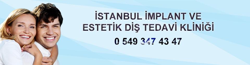 İMPLANT VE ESTETİK DİŞ KLİNİĞİ