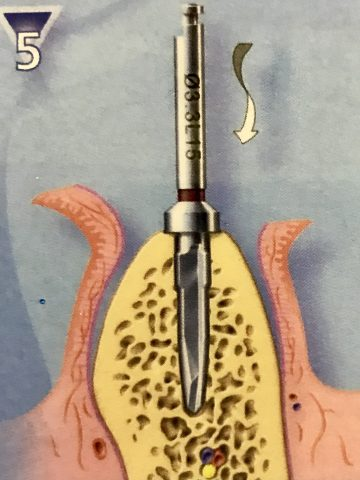 implant diş yapımında kemik